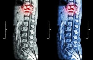 The Levels of Spinal Cord Injury, Explained